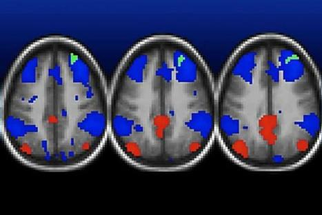 Childhood Depression and Altered Brain Connectivity Linked to Poverty | the plastic brain | Scoop.it