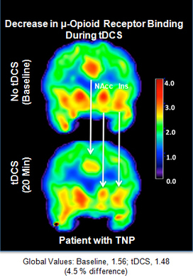 University of Michigan News Service   Electric stimulation of brain releases powerful, opiate-like painkiller   Brain Imaging and Neuroscience: The Good, The Bad, & The Ugly   Scoop.it