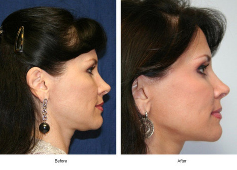 Face Lift Surgery helps Reverse the Signs of Aging | Houston Plastic and Craniofacial Surgery | Scoop.it