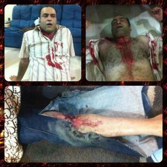 #Bahrain: photo of @HasanMarzooq (vise president of Alwahdawi political group) injured with stun grenades #Jun22 | Human Rights and the Will to be free | Scoop.it
