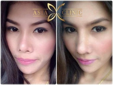 Thailand - Revision Rhinoplasty Before and After | AsiaPlasticSurgery | Scoop.it
