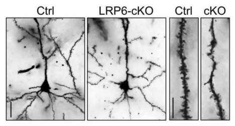 Researchers Reveal Pathway that Contributes to Alzheimer's Disease | Alzheimer's Support | Scoop.it
