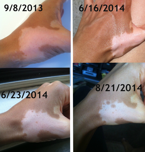 Vitiligo Natural Treatment Repigmentation Update  - The Vitiligo Girl   Vitiligo   Scoop.it