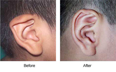 Microtia Ear Reconstruction Surgery | Houston Plastic and Craniofacial Surgery | Scoop.it