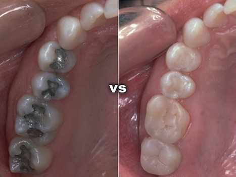 Colored Dental Fillings | delhi dental center | How Much Do Teeth Implants Cost, Tooth Implants | Scoop.it