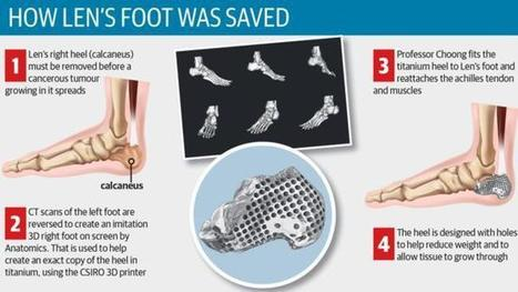 Australian Doctors Save Cancer Patient's Leg From Amputation With 3D Printed Heel Bone | 21st Century Innovative Technologies and Developments as also discoveries, curiosity ( insolite)... | Scoop.it