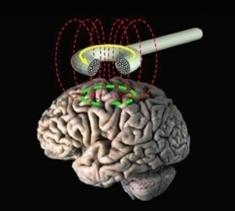 Magnetic Stimulation May Halt Rumination in Depression | Social Neuroscience Advances | Scoop.it