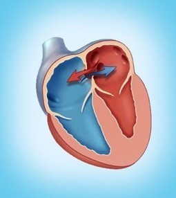 Know About Hole In Heart At Birth | Blood Disorders | Scoop.it