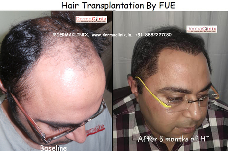 Side effects of hair transplant | DermaClinix - The Complete Skin & Hair Solution Center | Scoop.it