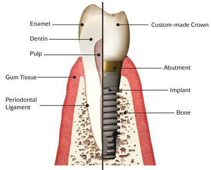 Everything That You Need to Know About Dental Implants - The Suggested | Dental Clinic | Scoop.it