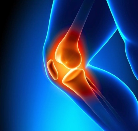 Low Level Laser: A Palliative for Knee Osteoarthritis Patients | Chiropractic | Scoop.it