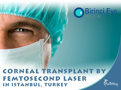Femtosecond Laser Asissted Corneal Transplant Surgery Istanbul,Turkey   Medical Tourism   Scoop.it