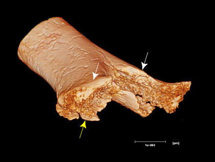Une opération chirurgicale il y a 7000 ans : la plus ancienne amputation découverte en France | Aux origines | Scoop.it