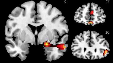 Like chocolate and beauty, good ads light up your brain - Newsworks.org | Neuroscience-neuromarketing | Scoop.it