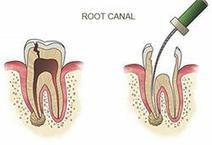 Looking For Root Canal Treatment at Low Cost.? | Best Dental Hospital Chanda Nagar | Scoop.it