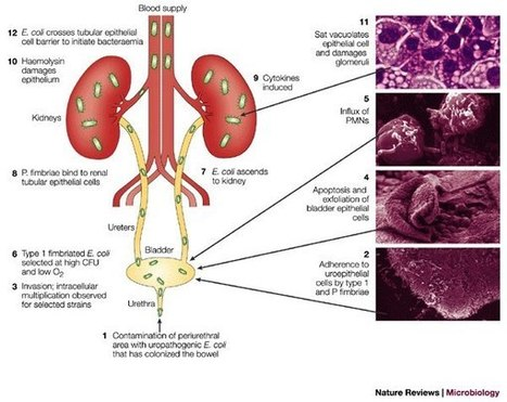 Pathogenesis of Urinary Tract Infection caused by E.Coli   ORAL PRECANCEROUS LESIONS   Scoop.it