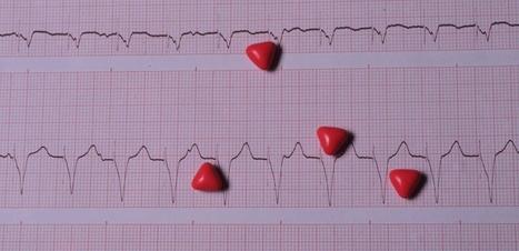 Cardiologie : comment prévenir la fibrillation auriculaire | Health , Preventive  health | Scoop.it