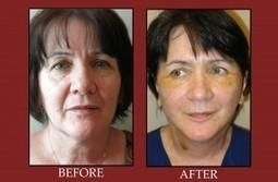 MACSlift Patient – Post-Op Day 4   Facial Plastic Surgeon Salt Lake City, Facelift - Browlift, Rhinoplasty, Utah Eyelid Surgery by Dr. Scott Thompson   Facial Plastics   Scoop.it