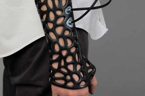 3D Printed Cast Speeds Bone Recovery Using Ultrasound | I Fucking Love Science | Bio issues | Scoop.it