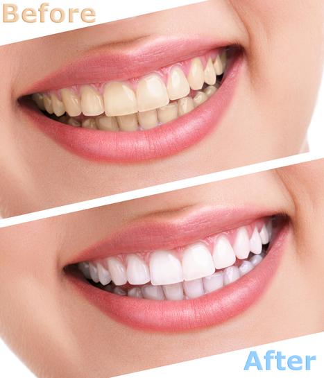 Dental jewellery in Delhi | Dental Clinic in New Delhi | Scoop.it