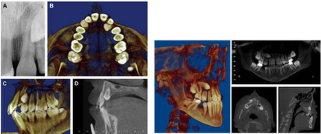 CBCT – An Advanced Diagnostic Tool for Orthodontics and Other Specialties in Dentistry – A Systematic Review | 3D Maxillofacial Imaging | Scoop.it