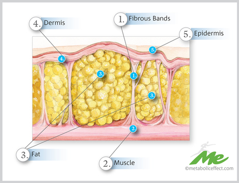 What Causes Cellulite | Metabolic Effect | mesociclo | Scoop.it