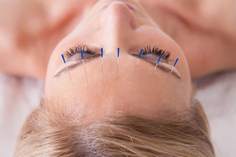 Why You Should Ditch Your Dermatologist For Acupuncture   Acupuncture and dermatology   Scoop.it