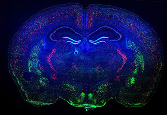 Scientists home in on key spot in brain for autism risk — | Brain Imaging and Neuroscience: The Good, The Bad, & The Ugly | Scoop.it