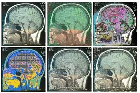 Mettre le cerveau en marche : le dialogue symétrique entre les neurosciences et les arts | Forum d'Avignon | Cerveau intelligence | Scoop.it