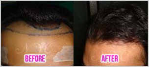 Best Hair transplantation | Best Hair Transplant Surgeon in Bangalore | Scoop.it