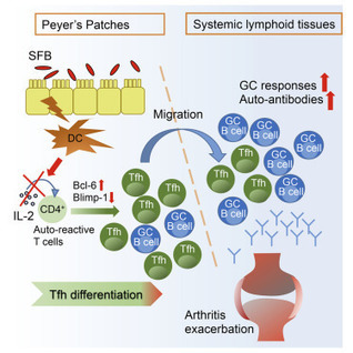 Gut Microbiota Drive Autoimmune Arthritis by Promoting Differentiation and Migration of Peyer's Patch T Follicular Helper Cells: Immunity | Rheumatology-Rhumatologie | Scoop.it