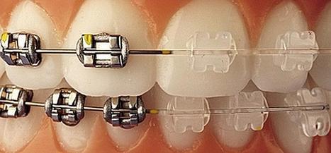 Ortodoncia: ¿Salud o estética? | Apasionadas por la salud y lo natural | Scoop.it