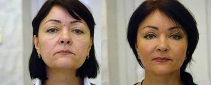 Cum mi-am întinerit pielea feței în doar 2 săptămâni | Produse sănătate și frumusețe - România | Scoop.it