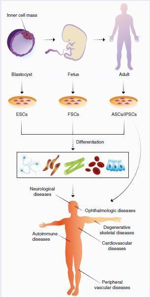 Cell-based therapy approaches: the hope for incurable diseases   bioengineering   Scoop.it