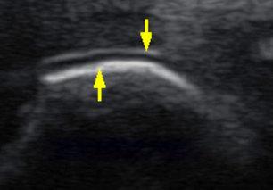 Viện Gút TP.HCM: Áp dụng siêu âm chẩn đoán sớm bệnh gút | Thông tin y khoa | Scoop.it