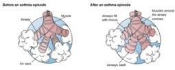 Symptoms of Mild Asthma | Asthma -- The Disease of the Airways | Scoop.it