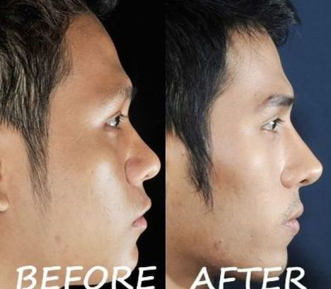 Silicone+Tip Plasty Ear Cartilage Photos Thailand | Bangkok Aesthetic Surgery Center | Best Plastic Surgery Clinic In Thailand | Scoop.it