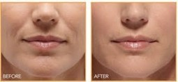 Wrinkle Treatments – Get the Facts on Botox, Radiesse Injectable Fillers   Is Botox cosmetic for you?   Scoop.it