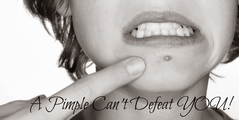 My story: A pimple can't defeat you! | Knowledge Streak | Knowledge Streak. | Scoop.it