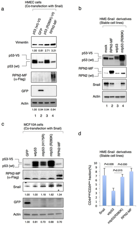 Ribophorin II regulates breast tumor initiation and metastasis through the functional suppression of GSK3[bgr] : Scientific Reports : Nature Publishing Group   Other World   Scoop.it