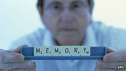 Test could spot Alzheimer's early | Brain Plasticity | Scoop.it