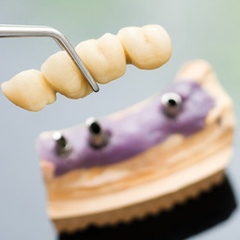 Denture Clinic, Inc: What are the advantages of implant-supported full bridges? | Dental Implants Seattle | Scoop.it