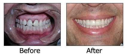 Dentist Chicago - Cosmetic Dentistry Chicago IL - Orthodontics Chicago - Chicago Dentist | Health | Scoop.it