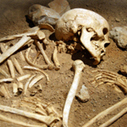 """HowStuffWorks """"10 Oldest Known Diseases"""" 