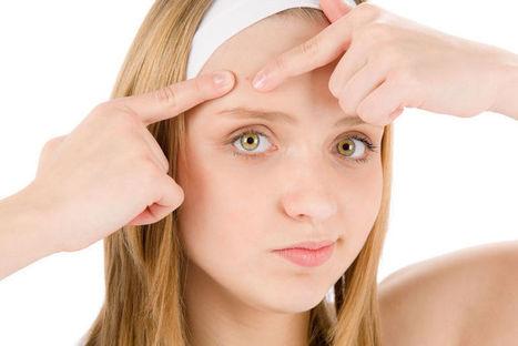 Cara Merawat Wajah Berminyak dan Berjerawat Secara Alami | Kumpulan Tips Kecantikan dan Kesehatan | Scoop.it