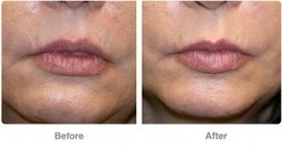 Advantages of Dermal Fillers | Younger You Network | Anti Ageing Treatment | Scoop.it