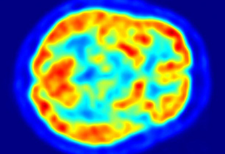 High blood sugar may raise Alzheimer's risk | Five Regions of the Future | Scoop.it