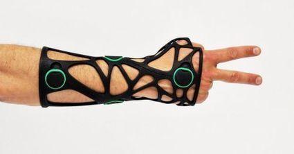 L'impression 3D signe-t-elle la fin des plâtres médicaux ? | Hopital 2.0 | Scoop.it