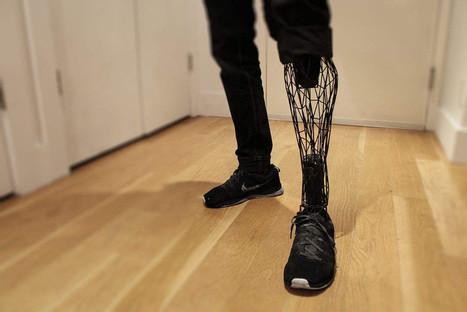 Réparer son corps avec une imprimante 3D - H+ Magazine   innovation, tendances, futur   Scoop.it