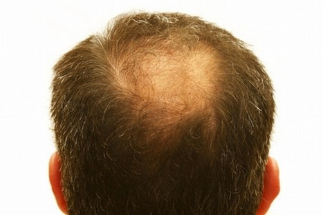 Dermatologist or Hair Transplant Surgeon? Whom to Approach? | Hair Transplant News | Scoop.it
